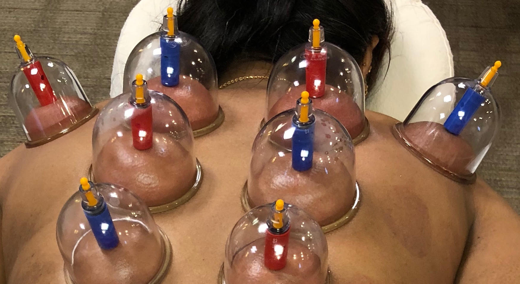 Bio magnetic cupping